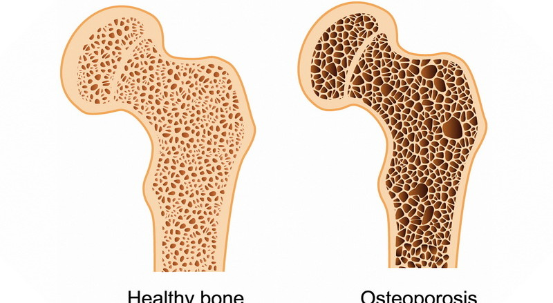 osteoporosis-osteoporose-osteoporoza-m80-m85-mother-tincture-urtinktur-teinture-mere-homeopat-tinktura-ekstrakt-biljni-preparati-com-yt1mi-blagotvorne-biljke