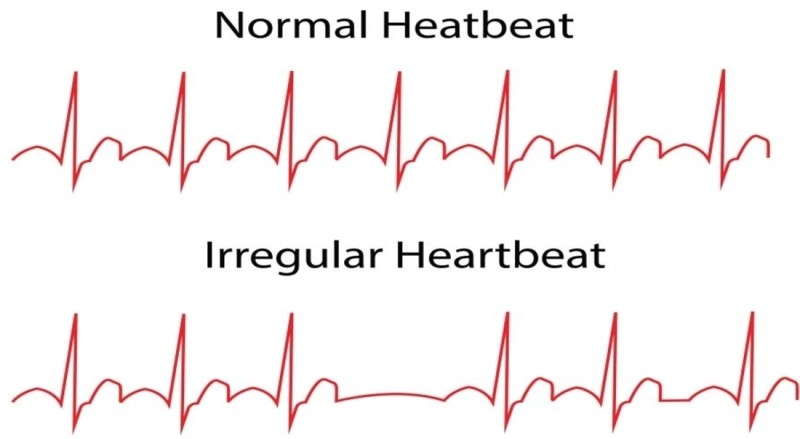Heart_ReferenceBook_final.indd