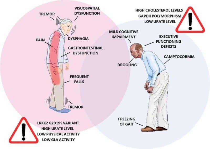 PARKINSON STOP 6 MIX Kompozitna formula kod Parkinsonove bolesti  MKB-10 G20