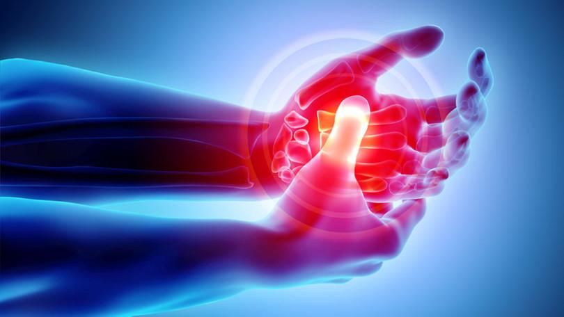 REUMATOIDNI ARTRITIS 6 MIX Kompozitna formula kod reumatoidnog artritisa