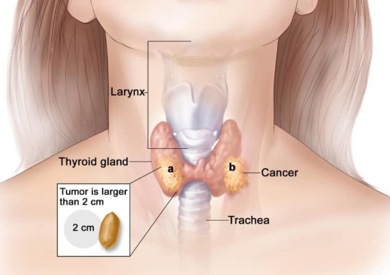Stage 4 Thyroid Ca