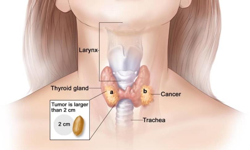 CA TIROIDEJE STOP 6 MIX Formula composita ad Ca thyroideae ICD-10 C73
