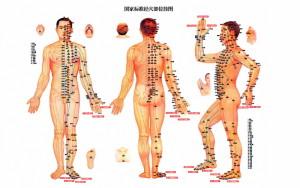 Acupuncture-Akupunktur-Akupunktura -mother-tincture-urtinktur-teinture-mere-homeopat-ekstrakt-tinktura-biljni-preparati-com-Alternativa-Metode-dijagnostike-lecenja
