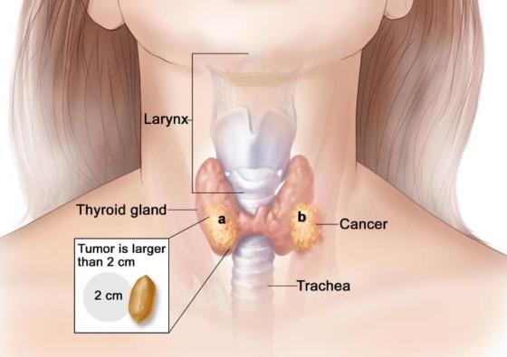 Stage 4 Thyroid Ca