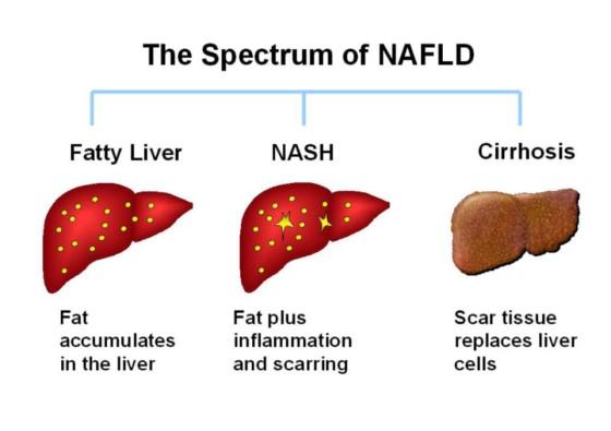 masna jetra spekttrum nafld